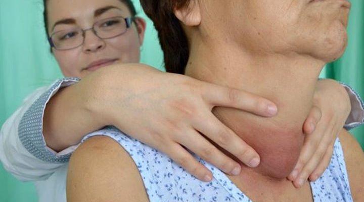 Síntomas de enfermedades de tiroides en mujeres