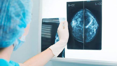 conoce ultrasonido mamario