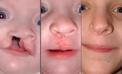 El Labio y Paladar Hendido es una afección que se presenta en 1 de cada 750 niños